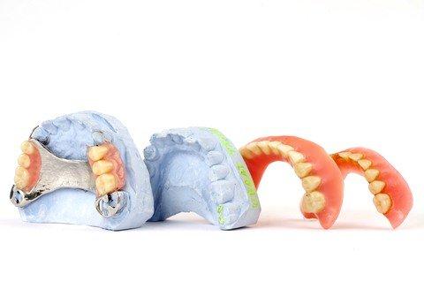all-dentures